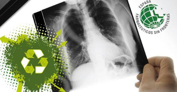 Radiografías
