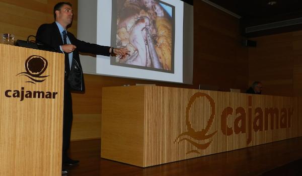 Obesidad Almería charla sobre salud