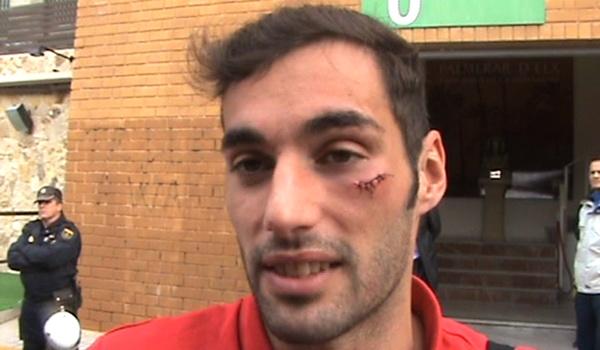El delantero holandés Powel, del Elche, líder de la Liga Adelante, le ha partido la cara al central del Almería